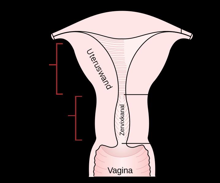 Schematische Darstellung der Gebärmutter (Uterus) — Extremnews — Die ...