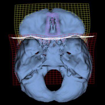 3D-Rekonstruktion der Schädelbasis. Die Gitter zeigen Veränderungen vom frühen Menschen zum Homo sapiens auf. Bild: 3D Morphometrics Lab, Paleoanthropology Group, Museo Nacional de Ciencias Naturales, CSIC (idw)