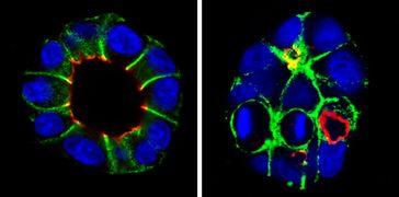 Während normale Nierenzellen (links) nebeneinander liegen, teilen sich Nierenzellen ohne Plexin-B2-R Quelle: MPI f. Herz- und Lungenforschung (idw)