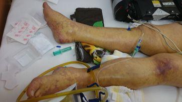Patientin mit schwerem septischen Schock (Blutvergiftung) und Ischämiezonen an der Haut bei Mikrothromben
