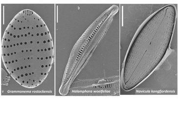 Das sind die drei neu entdeckten Mikroalgen Quelle: (Foto: privat) (idw)