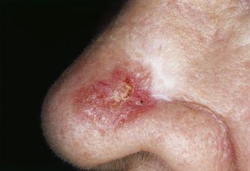 Heller Hautkrebs: Sklerodermiformes Basaliom (Morphea-Basaliom)[