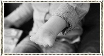 Immer mehr Kinder werden ohne Hand gebohren (Symbolbild)