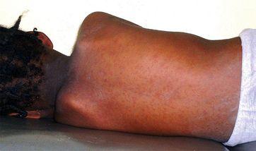 Masern-Ausschlag bei einem nigerianischen Mädchen.