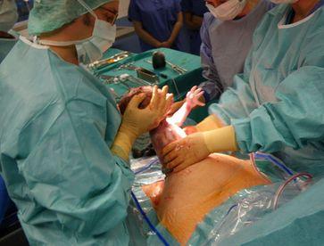 Herausziehen des Kindes beim Kaiserschnitt. Bild: HBR / wikipedia.org