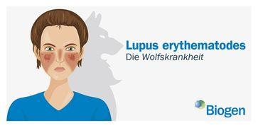 Lupus erythematodes Bild: Biogen GmbH Fotograf: Biogen GmbH