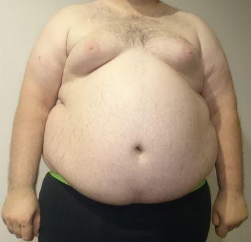 Typisches Erscheinungsbild bei Fettverteilung, die sich besonders auf den Bauchbereich konzentriert (Apfeltyp)