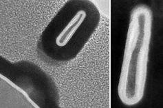 So sieht der kleinste Transistor der Welt aus.