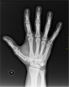 Röntgenbild einer menschlichen Hand