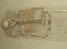 Skelett: Ältester Fall von Down-Syndrom. Bild: pixelio.de/Dieter Schütz