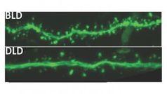 Gehirnaktivitäten nach Lichtkur (oben), Dämmerlicht-Aufenthalt. Bild: msu.edu