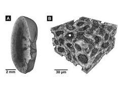 CT einer Mausniere (links) und eine des Gewebes. Bild: Müller, Pfeiffer, tum.de