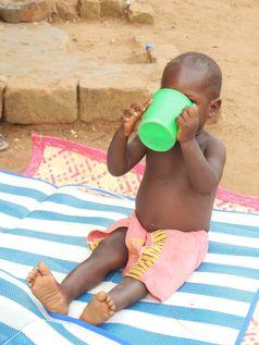 Fehlernährung ist in Afrika ein weit verbreitetes Problem.