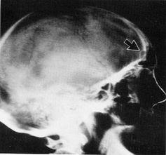 Röntgenaufnahme Implantat