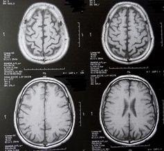 Gehirn-Scans: neue Erkenntnisse bei ALS.