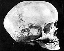 Vergrößerter Schädel bei Hydrocephalus Bild: de.wikipedia.org