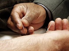 Erst allmählich wird erforscht, was Akupunktur im Körper bewirkt. Bild: Wikimedia Commons