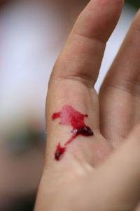Wunde: Zellen erkennen Ereignis sofort. Bild: pixelio.de, Maren Beßler