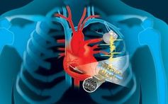 So könnte der Stromgenerator am Herzen aussehen.