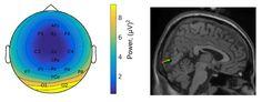 Topographie der EEG-Antwort (l.) und ihre Lokalisation im Gehirn (r.) zeigen visuelle Verarbeitungsprozesse bei den Bewegungsbedingungen langsames und normales Gehen – grün und rot; Stehen – schwarz. Quelle: (Bild: Barbara Händel / Universität Würzburg) (idw)