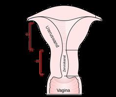 Schematische Darstellung der Gebärmutter (Uterus)