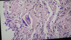 Die Braunen Stellen zeigen Metall-Ablagerungen im Gewebe eines Impftoten. Bild: WB / Eigenes Werk