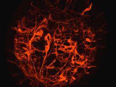 Hier sieht man eine Planula-Larve mit sich entwickelndem Nervensystem. Quelle: Copyright: F. Rentzsch (idw)