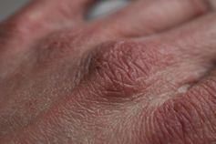 Trockene Haut an den Händen ist ein weitverbreitetes Problem in der kalten Jahreszeit. Naturkosmetik sorgt für geschmeidige Haut mit einem guten Gefühl.