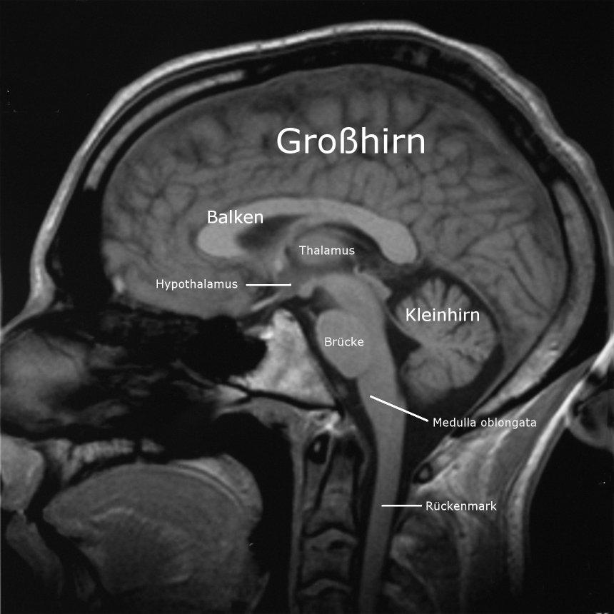 MRT-Bild eines menschlichen Gehirns. Schnitt sagittal, die Nase ist ...