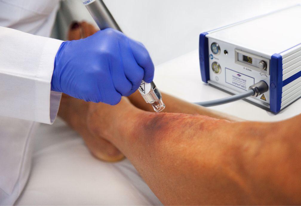 Wundbehandlung mit dem kINPen® MED Plasmajet