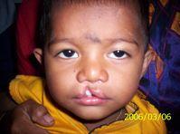 Nicht durchgängige Lippenspalte (Nasenboden ist nicht betroffen)