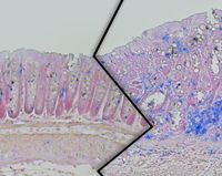 Dickdarmgewebe aus schlanken (links) und übergewichtigen (rechts) Mäusen der Studie. Bei den übergewichtigen Tieren ist ein verstärktes Tumorwachstum mit erhöhter Immunzellanzahl (blau) zu sehen.