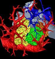 Dreidimensionale Rekonstruktion von drei «Lungentrauben» (Acini) der Mauslunge an den Endbronchien (grau), zusammen mit den Endästen der Lungenarterien (blau) und der Lungenvenen (rot). Quelle: Bild: Dr. Dragos Vasilescu, University of Iowa. (idw)