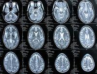 Gehirn im Schnitt: Denken und Sprechen gehören zusammen. Bild: pixelio.de, Rike