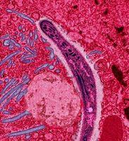 Malaria: Plasmodium im Zytoplasma einer befallenen Zelle (EM-Aufnahme in Falschfarben)