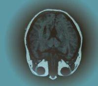 Gehirn: bei vielen Freunden vermutlich größer. Bild: pixelio.de, M.Torloxten