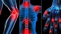 OPC und MSM verringern Entzündungen im menschlichen Körper – Ärzte schweigen