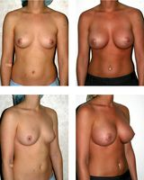 Brustvergrößerung: vor- und nachher