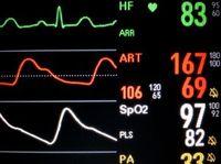 Vitalwerte: Herzinfarkte in den USA ungleich verteilt.