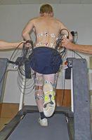 Rennender Proband auf dem Laufband, Elektroden messen die Aktivität von Muskeln, die für die Fortbewegung wesentlich sind. Quelle: Foto: UKJ (idw)