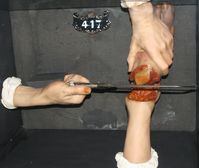 Falsches Bein amputiert? Passiert öfters... (Symbolbild)