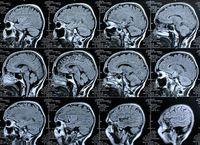 Gehirn-Scans: MRT zeigt Veränderungen deutlich auf. Bild: pixelio.de, Rike