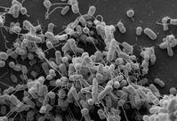 Elektronenmikroskopische Aufnahme gentechnisch veränderter Bakterienstämme der Arten Escherichia coli und Acinetobacter baylyi, die Aminosäuren über Nanokanäle austauschen. Quelle: Martin Westermann / Elektronenmikroskopisches Zentrum am Universitätsklinikum der Friedrich-Schiller-Universität Jena (idw)
