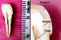 Zahnmark  (Pulpa) im Zahnquerschnitt