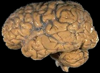 Ein menschliches Gehirn