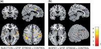 MRT-Aufnahmen des Gehirns: Stressinduzierte Gehirnaktivierung während dem Betrachten von Bildern von anderen Personen in schmerzvollen Situationen. Quelle: Copyright: Claus Lamm (2016). Published by Oxford University Press (idw)