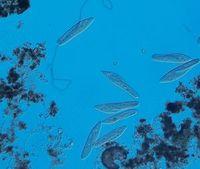 Mit verschiedenen Wimpertierchen wurden Mini-Ökosysteme erzeugt.
