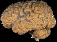 Präpariertes menschliches Gehirn