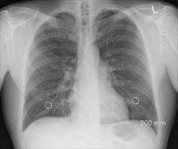 Lungen (Symbolbild)