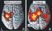 Aktivitätsmuster bei Gesunden und Schlaganfall-Patienten, gemessen mit fMRT